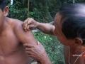 Applicazione del sapo sulla pelle.